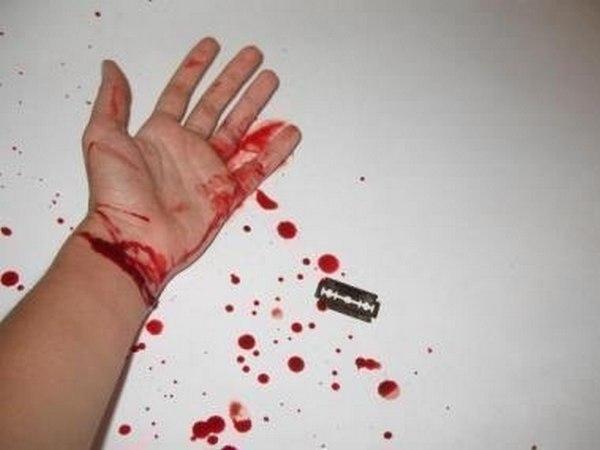 Фото на руках кровь