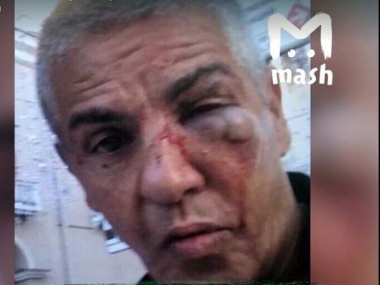 Избитый в России звезда «Такси» Насери может ослепнуть, — СМИ