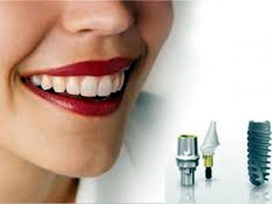 Современная имплантация зубов по доступным ценам