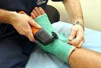 при переломах вместо обычного гипса теперь можно использовать ...