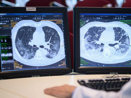 mini lungs for SARS-CoV-2 research