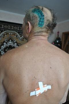 На Житомирщине раненный пенсионер, истекая кровью, обезвредил вооруженного преступника, фото-1