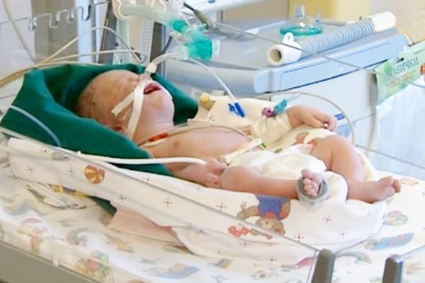 Фото грудного ребенка в реанимации