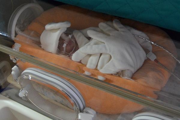 Фото недоношенного ребенка в кувезе 31