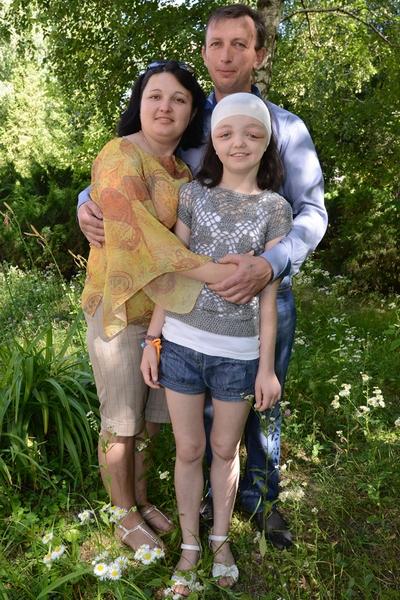 Родители девочки довольны результатом операции. У Лилии восстановилась симметричность лица — это заметно, несмотря на послеоперационные отеки