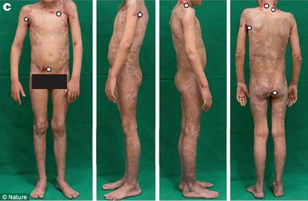 Парню  с уникальным  заболеванием пересадили генетически модифицированную кожу