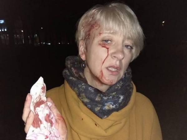 ВПолтаве неизвестные избили судью Ларису Гольник иеесупруга