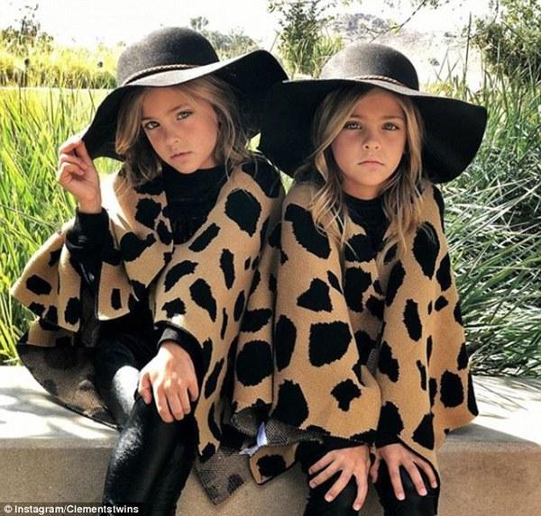 СМИ показали «самых красивых вмире» близняшек