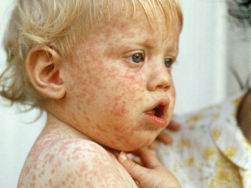 Как выглядит корь у детей фото начальная стадия симптомы фото