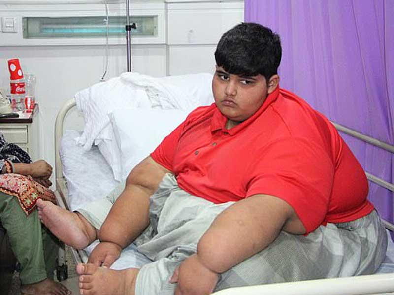 Найден «новый» самый толстый ребенок в мире: в Пакистане обнаружили мальчика весом почти 200 кг (фото) 3