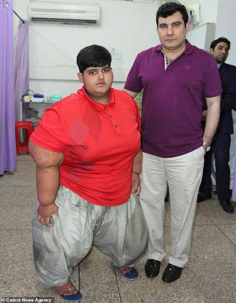 Найден «новый» самый толстый ребенок в мире: в Пакистане обнаружили мальчика весом почти 200 кг (фото) 2