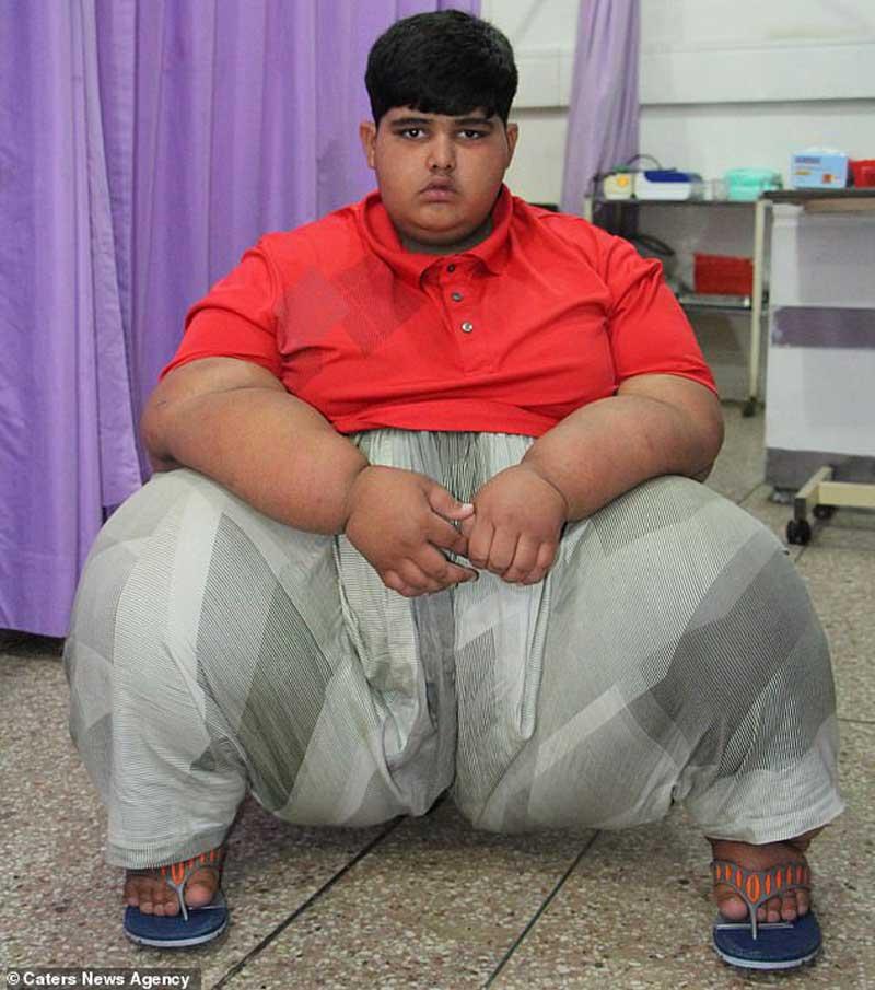 Найден «новый» самый толстый ребенок в мире: в Пакистане обнаружили мальчика весом почти 200 кг (фото) 4