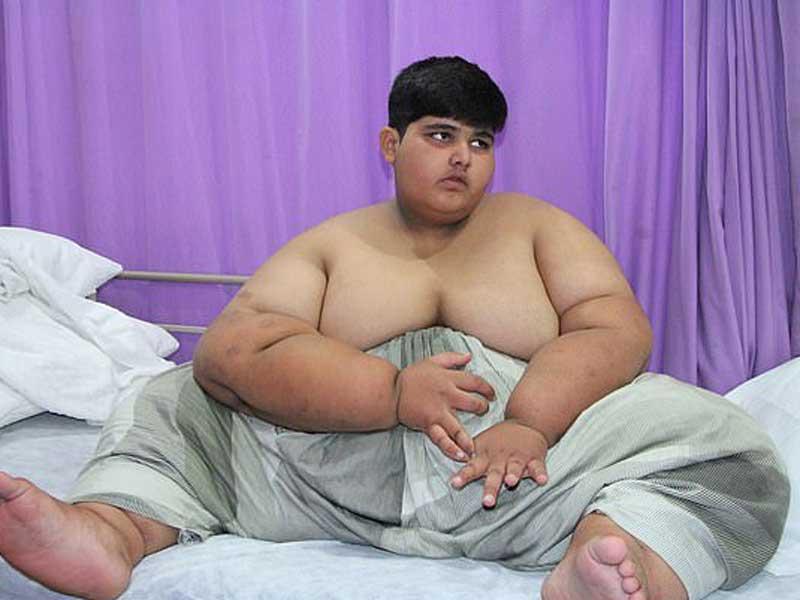 Найден «новый» самый толстый ребенок в мире: в Пакистане обнаружили мальчика весом почти 200 кг (фото) 1