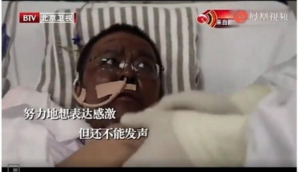 Китайці перетворилися в «негрів»: у двох перехворіли коронавірусів змінився колір шкіри